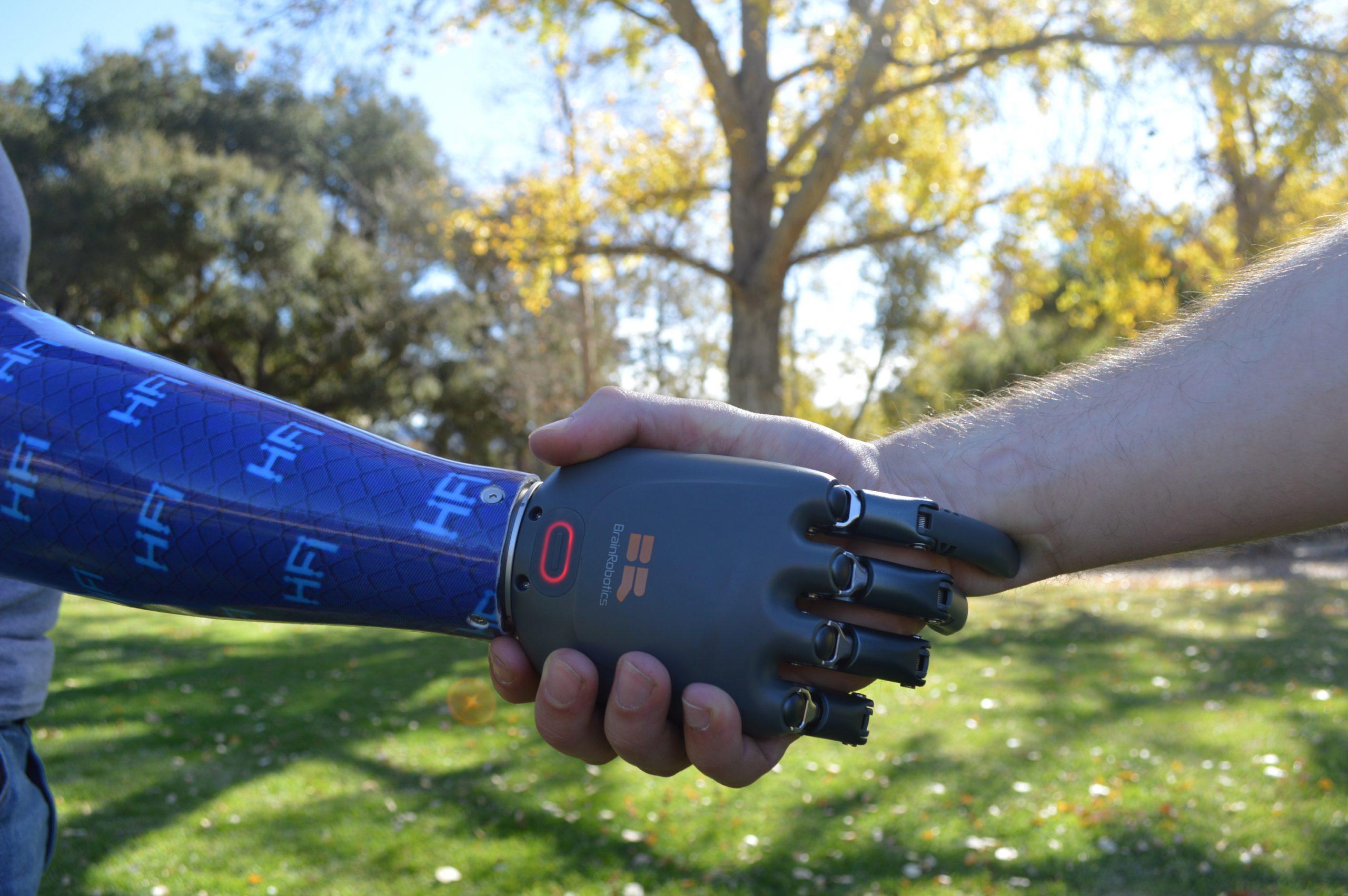 BrainRobotics_prosthetic-hand_handshake